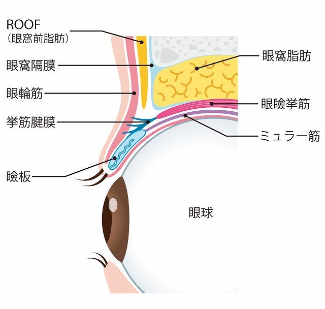 眼瞼下垂の手術方法
