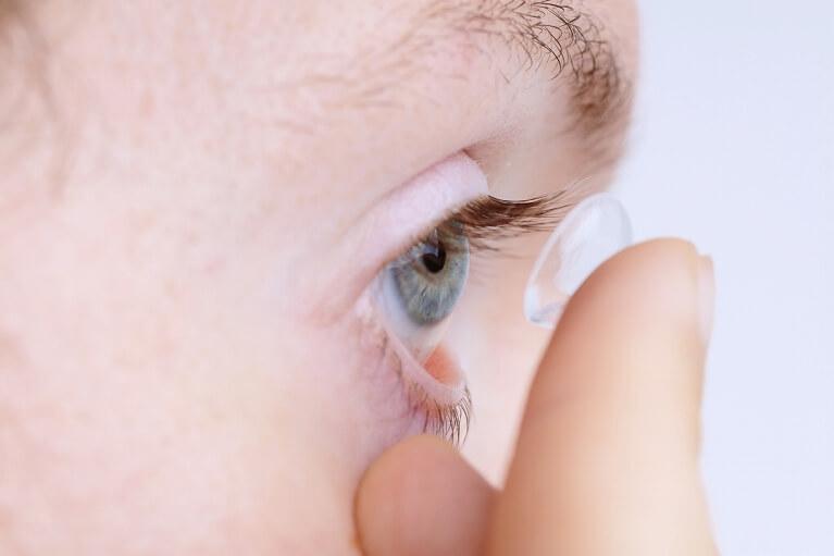 若年層に多いハードコンタクトによる眼瞼下垂