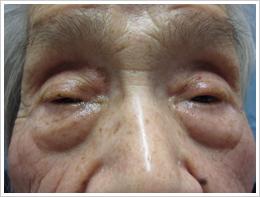 93歳女性 両眼 加齢性