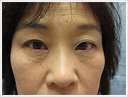 40代女性 左眼ハードコンタクト