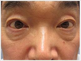 50代男性 両眼ハードコンタクト