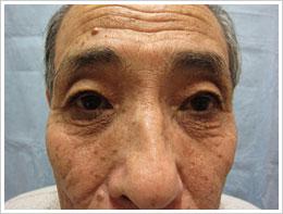 70代男性 両眼 加齢性