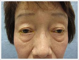 60代女性 両眼 加齢性