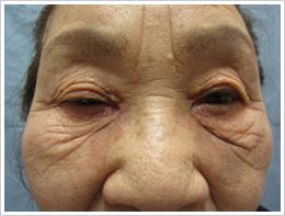 86歳女性 右眼 白内障術後